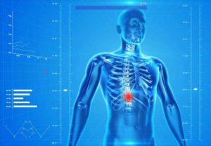 Il kinesiologo cura anche il mal di schiena